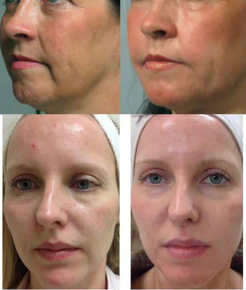 carboxiterapia en rostro antes y despues
