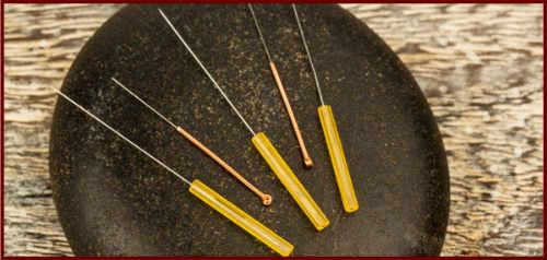como funciona la acupuntura