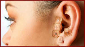 puntos de acupuntura para adelgazar