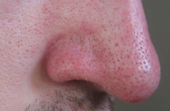 Son las tiras limpiadoras de poros malas para la piel