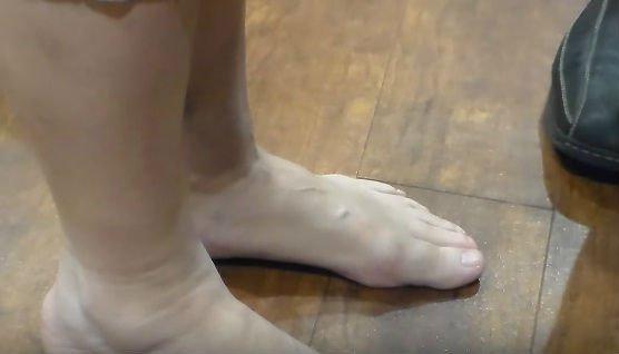 como desinflamar los pies