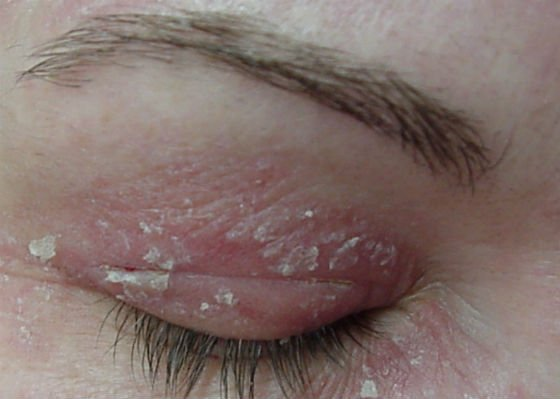 Los bancos cosméticos de vacío para el masaje en la cara en