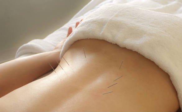 acupuntura para el dolor de espalda