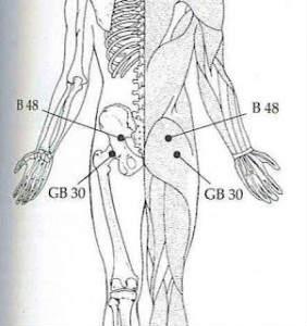 puntos de la cadera dolor de espalda