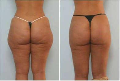 carboxiterapia antes y después en celulitis