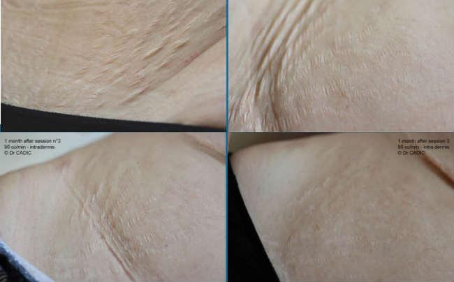 carboxiterapia estrias antes y después