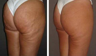 carboxiterapia antes y después en celulitis 2