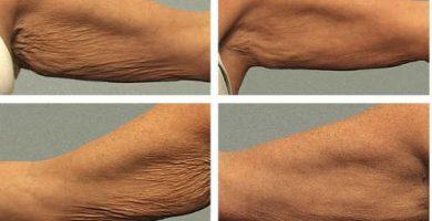 Imágenes del antes y después de la carboxiterapia