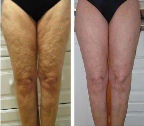 piernas-celulitis-carboxiterapia