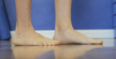 como corregir el pie plano