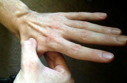 punto de presion en la mano para aliviar la espalda
