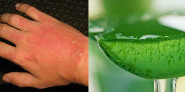 Remedios para la quemadura de la piel