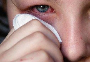 como desinflamar un chichón del ojo