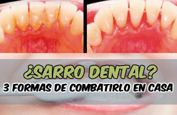 cómo quitar el sarro delos dientes con remedios caseros
