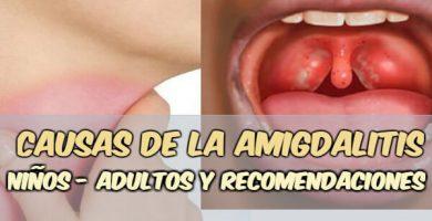 por qué se inflaman las amígdalas en adultos y niños