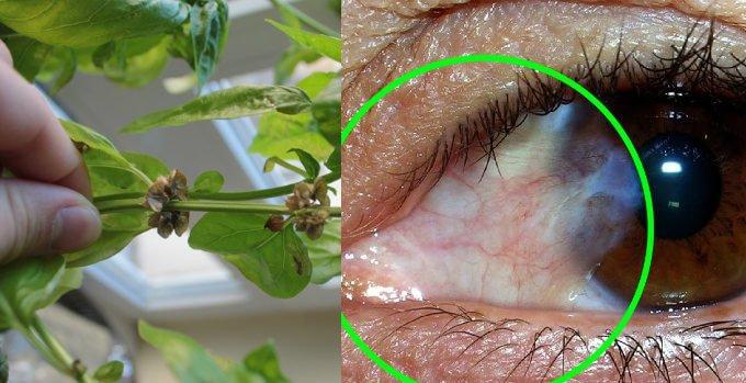 qué ponerme para quitar una uña ocular carnosidad