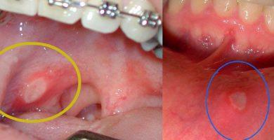 como eliminar o quitar una postemilla en la boca y el labio