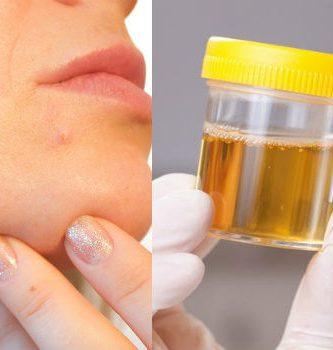 orinoterapia beneficios en la piel