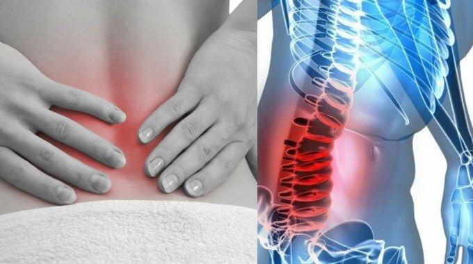 artrosis lumbar como reducir el dolor